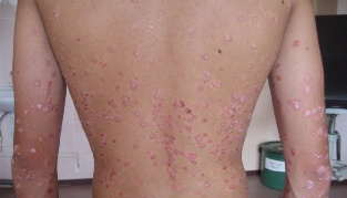 How to cure psoriasis fast