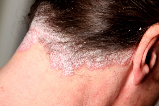 psoriasis of the head densely