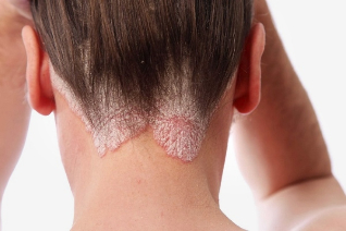 what causes psoriasis of the head densely