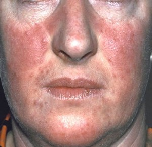 how to treat psoriasis on the face