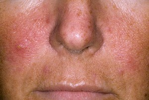 symptoms of psoriasis on the face