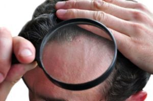 Psoriasis on the head through a magnifying glass